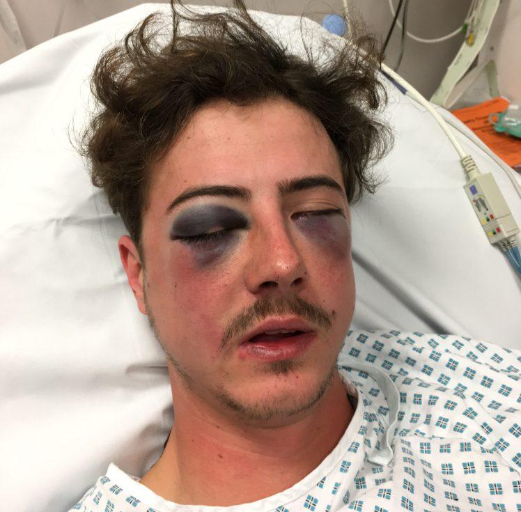co328-2017-victim-injuries1-e1493273411103.jpg